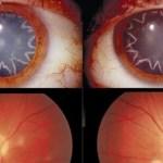 Hombre desarrolla cataratas en los ojos en forma de estrellas