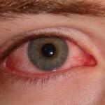 Ojos irritados: Descubre la importancia de la dieta