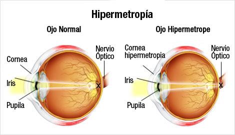 ojo-hipermetrope