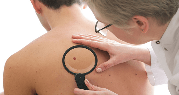 Early-Skin-Cancer