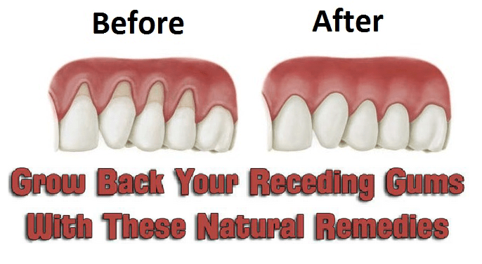 How To Get Rid Of Receding Gums Naturally