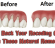 Grow back your receding gums