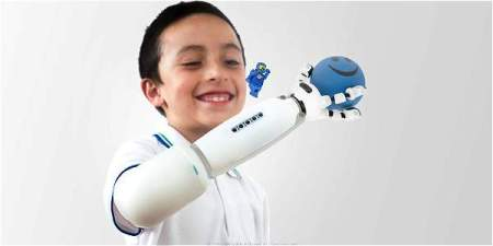 Diseñan una innovadora prótesis infantil compatible con Lego