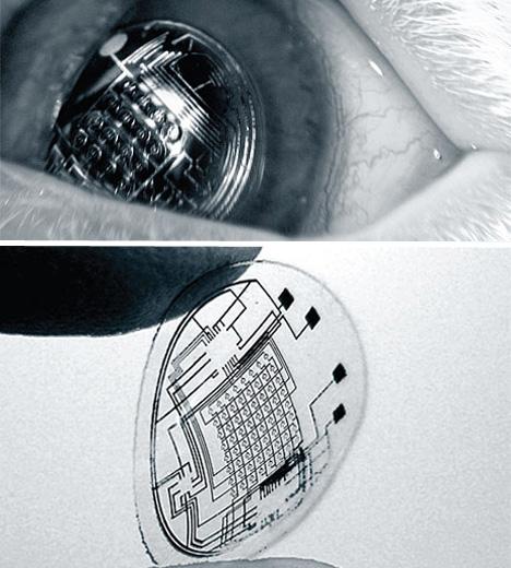 bionic-vision