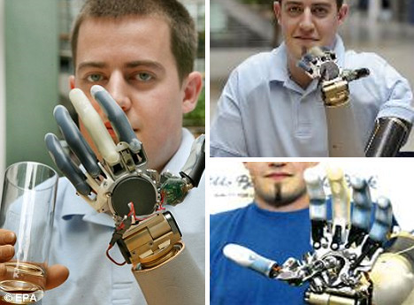 mind-controlled-prosthetic-limbs