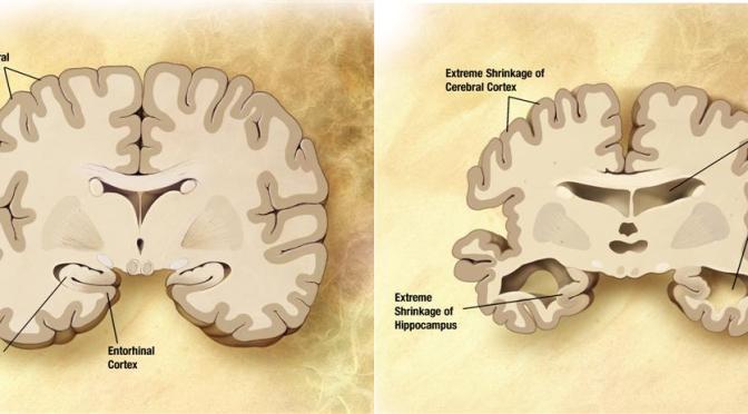 normal vs alzheimers brain (Large)