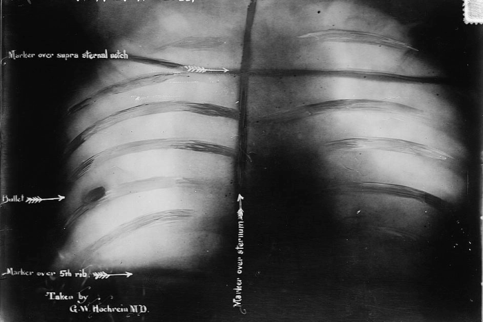X-Ray of Roosevelt (shows bullet)