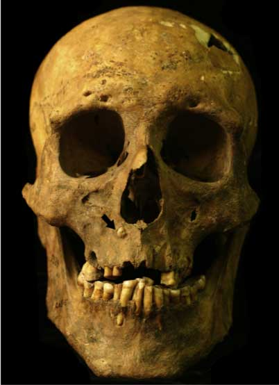 The skull of the man found in the site known as Burial 37 bears the distinct marks of acromegaly, new research finds. The black arrow indicates where the man's right eye tooth erupted just below his nose. (Photo by Eric Bartelink/Phoebe Hearst Museum)