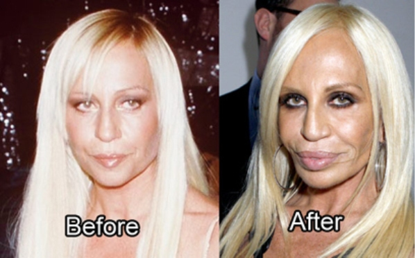 plastic-surgery-fail-wildammo (9)