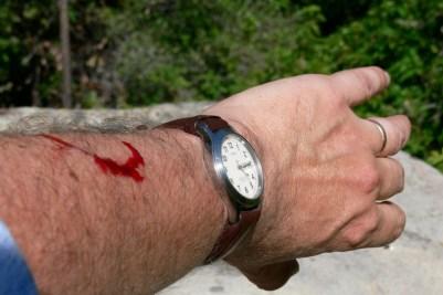 Bite from a feral Manzanita