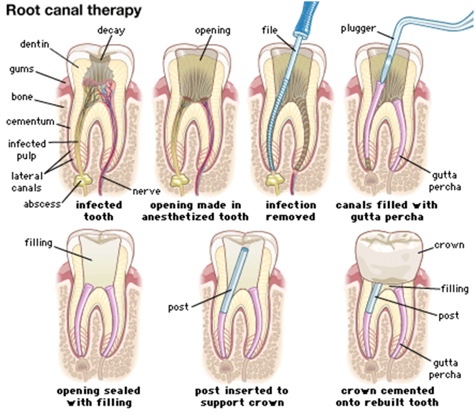 Endodontic Or Root Canal Therapy Windsor Family Dentist Windsor