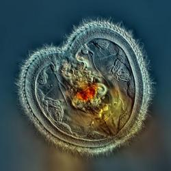 Nikon Small World 2014 Winners