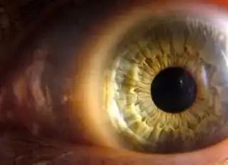 Look_close_macro_224801_l