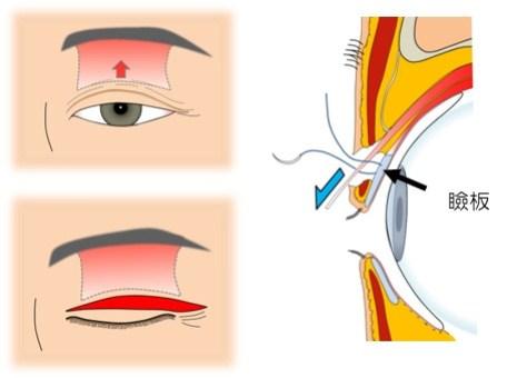 眼瞼下垂(まぶたの筋肉が緩んだ場合)