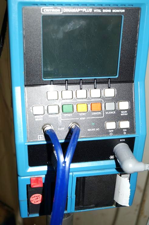 GE Critikon Dinamap Plus Patient Monitor (3)