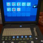 Sonoscape S2 portable ultrasound machine for sale