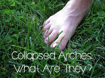 Collapsed arches