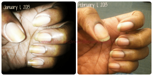 The Coconut Oil Nail Experiment