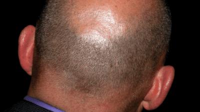 Santé des cheveux : les affections capillaires