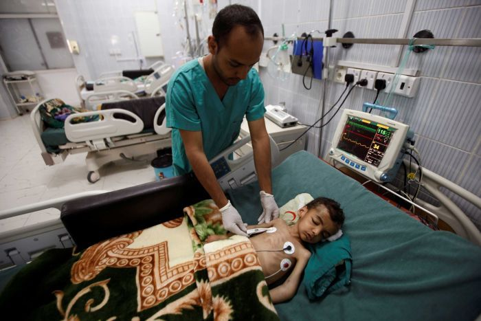 A nurse checks a boy at a hospital intensive care unit in Sanaa, Yemen September 27, 2016.