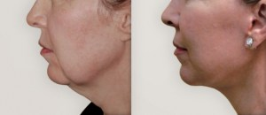 Facelift.Necklift.MultiLevelFatGrafting copy