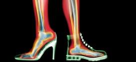 ACR Uygunluk Kriterleri 1: Akut ayak travmasında görüntüleme