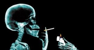 smokingxray