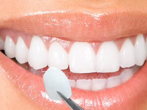 what are porcelain veneers 1