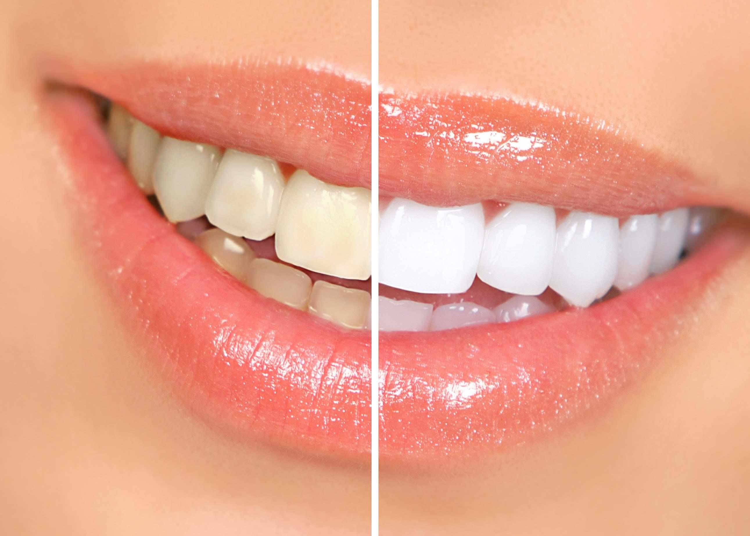 تبييض الأسنان بساعة و احدة فقط بورق الألمنيوم