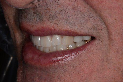Veneers After Image