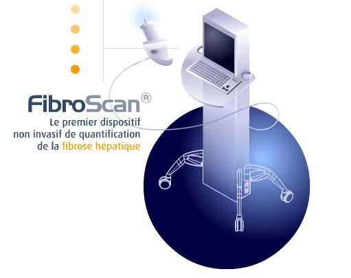 fibroscan.jpg