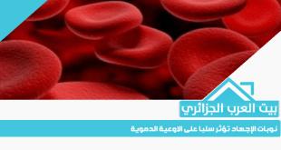 نوبات الإجهاد تؤثر سلبا على الاوعية الدموية
