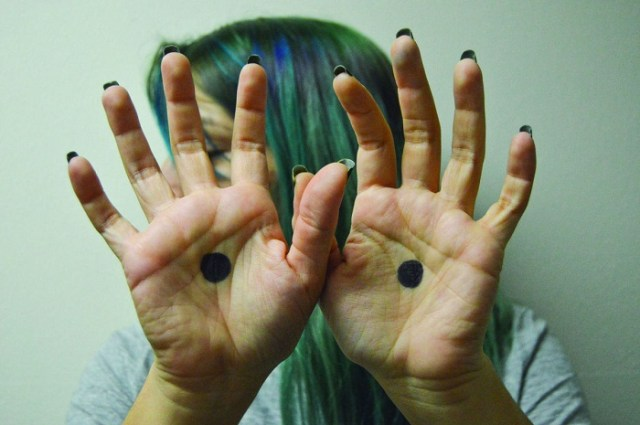 نقطة سوداء على اليد