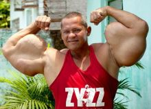 بالصور:  برازيلي يحقن نفسه بخليط قاتل ليحصل على عضلات عملاقة