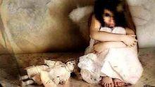 زوجة الأب تحرق الطفلةمروج بـصمّام قدر ضغط!