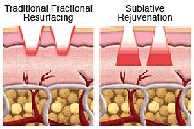 Sublative Rejuvenation