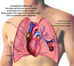 Learn coding CTA chest for Pulmonary Embolism Treatment