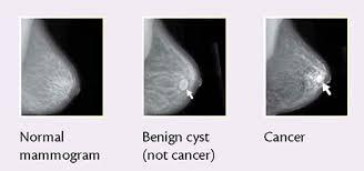 Diagnostic mammogram CPT Code