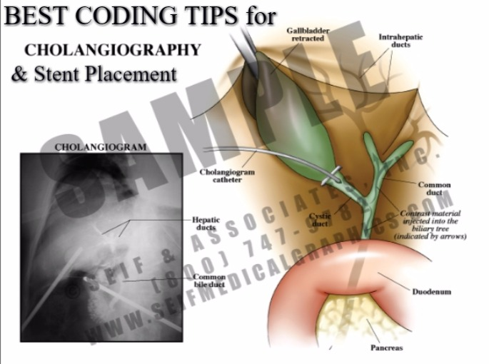 Coding tricks for CPT code 47531, 47537, 43738, 43739, 43740, 43741 & +43742
