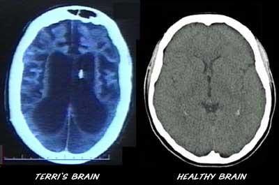 CT scan of Terri Schiavo's brain.