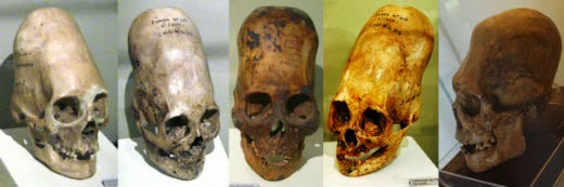 Elongated skulls; Traces of an unknown species