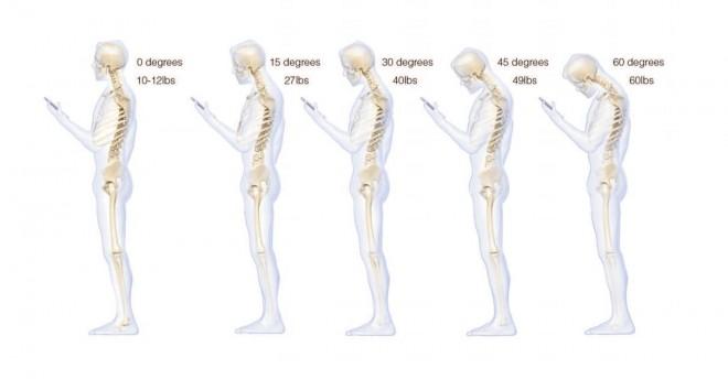 Smartphone-Belastung-Rücken