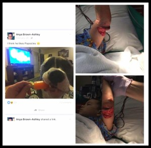 Collage of dog who attacked Wyatt Herrington and of his injuries, posted by his family to Pinterest.