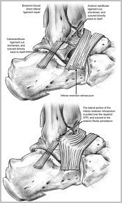Ankle Ligament Surgery edina, mn