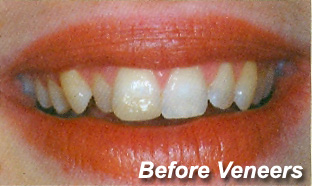 before_veneers