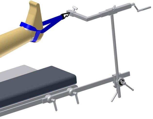 Soporte artroscopia de Tobillo – Mod. 6250