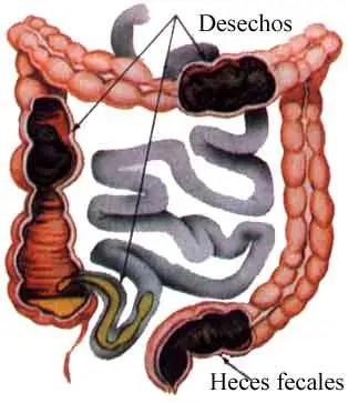 Resultat d'imatges de restos fecales en el colon