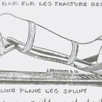 Double Incline Leg Splint – Illustration from Civil War Medicine by C. Keith Wilbur.