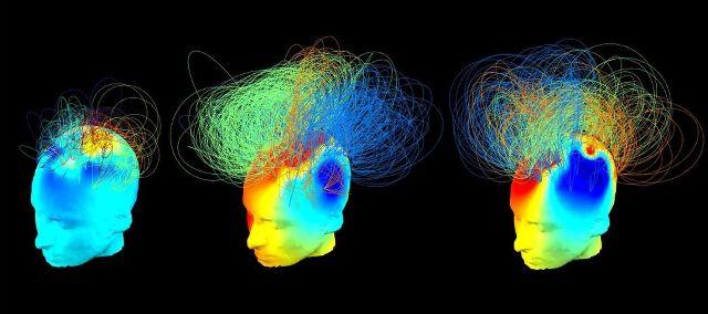 Χαρτογραφώντας τη συνείδηση - Πού κρύβεται η συνείδηση