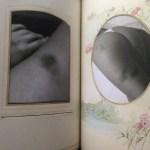 Bruise Book